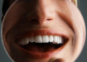Kebersihan Mulut Buruk